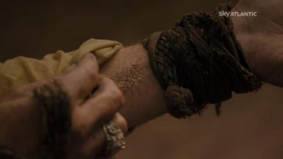 Jorah Mormont colpito dal morbo